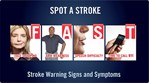 Holiday Heart Attacks:  Stroke Warning Signs and Symptoms